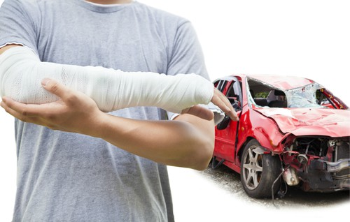 Image result for Accident Lawyers